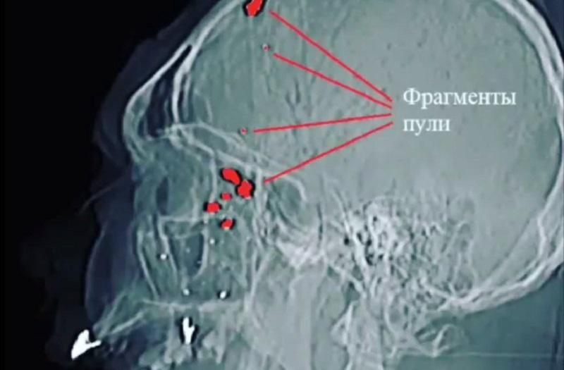 Врачи спасли мужчину с огнестрельным ранением головы