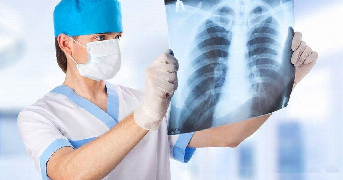 Что такое пневмония и чем опасно это заболевание